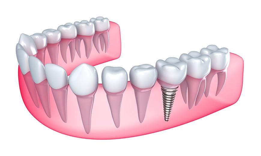 implant-tedavisi-1
