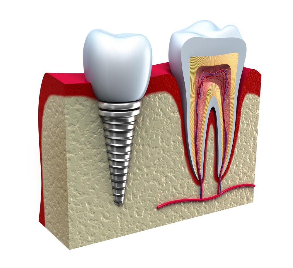 implant-tedavisi-3